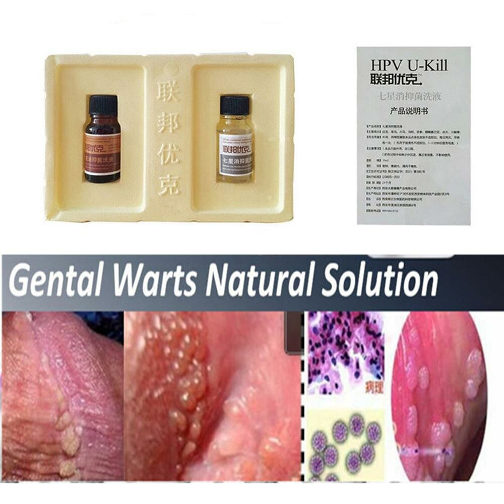 medical treatment for warts